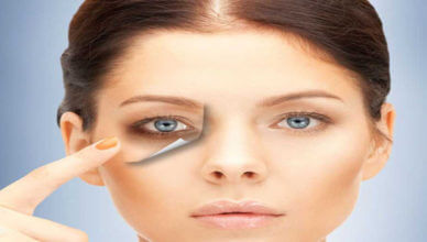 best remedy for dark circles